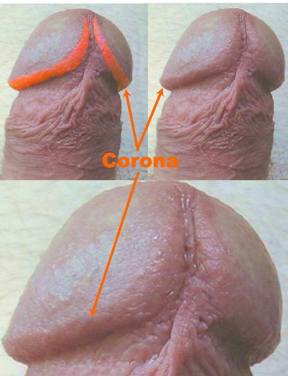 Circumcised Adult Penis 99